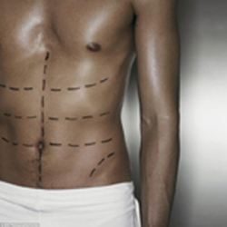 man's torse marked up for plastic surgery