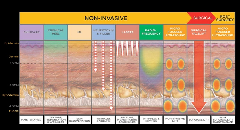 ultherapy graph (800x435)