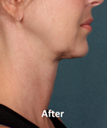 Patient after KYBELLA