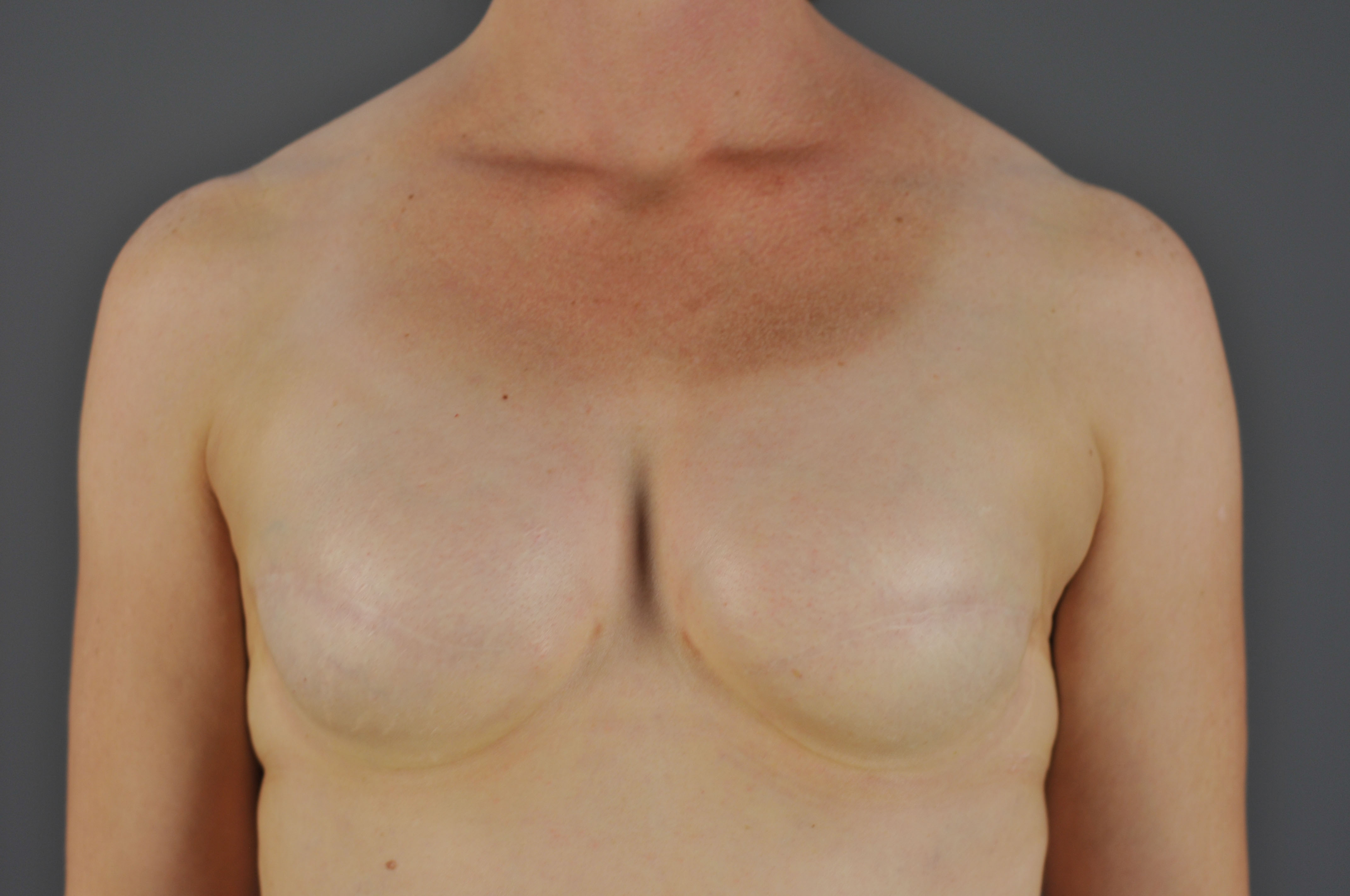 Breast reconstruction following surgery breast cancer pic 394