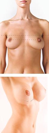 Breast Lift Procedure Model