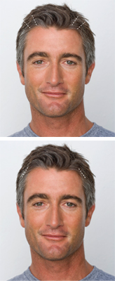 Male Brow Lift Model Face