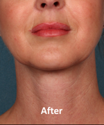 Kybella Patient Chin After Treatment