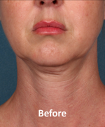 Kybella Patient Chin Before Treatment