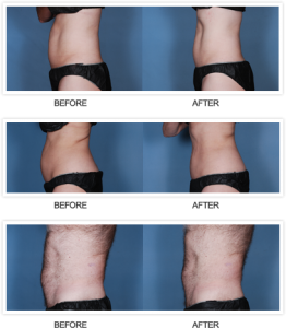 Real Patients Before and After Liposonix Treatment