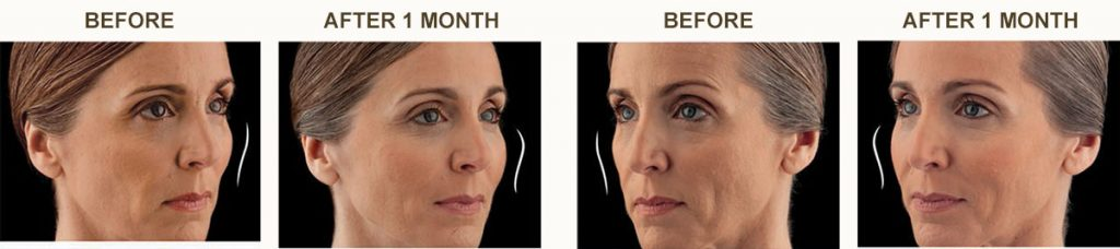 Juvederm Voluma Patient Before and After Procedure